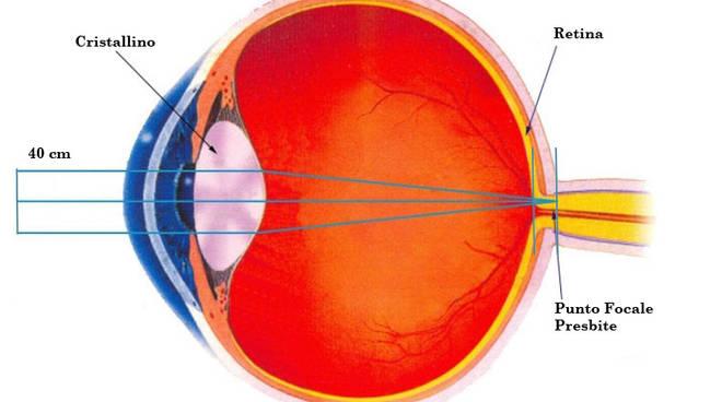 Occhio presbite