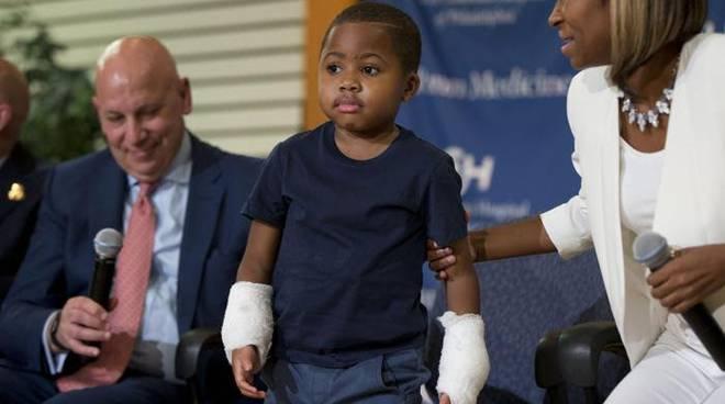 Zion Harvey: a 8 anni trapianto di entrambe le mani