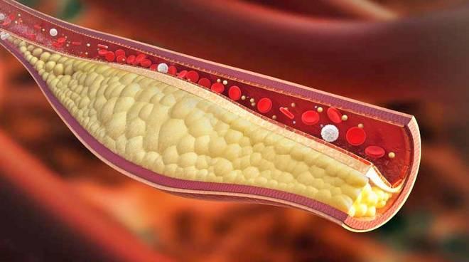 """Colesterolo cattivo, si dimezza il limite consigliato: i cardiologi dicono di """"non superare i 100"""""""