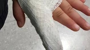 fasciatura sei dita
