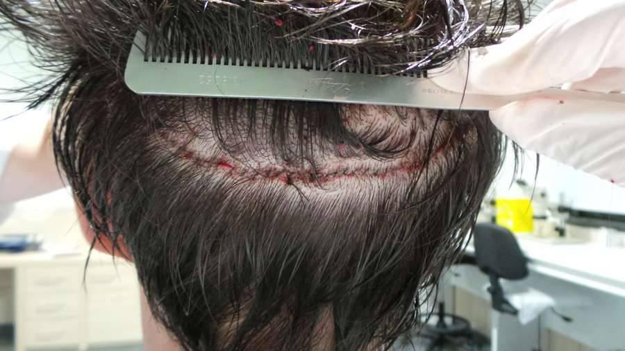 Al centro medico M.R. di Gorle autotrapianto di capelli