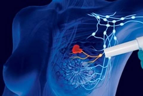 apparecchiatura ospedale seriate tumore seno