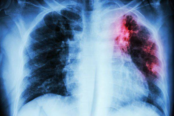 Maestra con tubercolosi latente per 30 anni