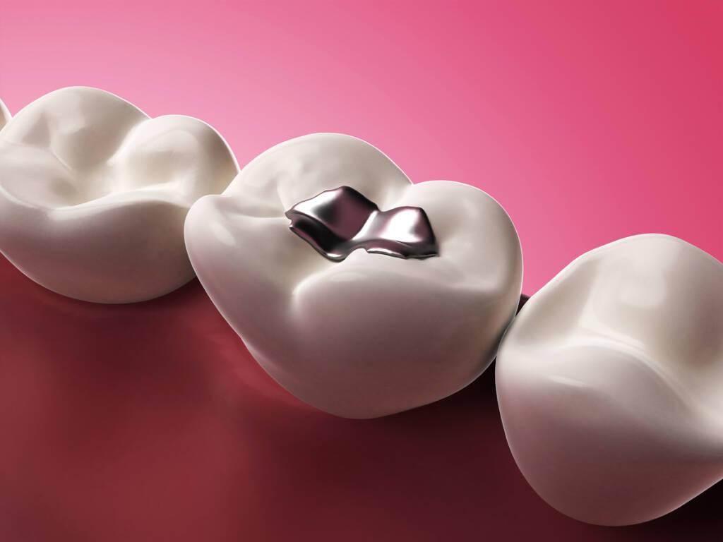 Otturazioni dei denti
