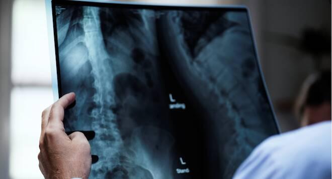 radiologia gorle