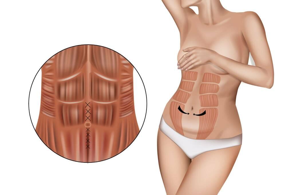 Diastasi addominale post gravidica