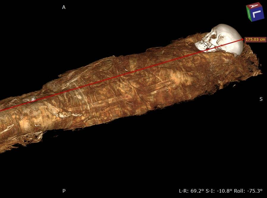 Autopsia virtuale sulla mummia da salvare del Museo Archeologico: prime scoperte